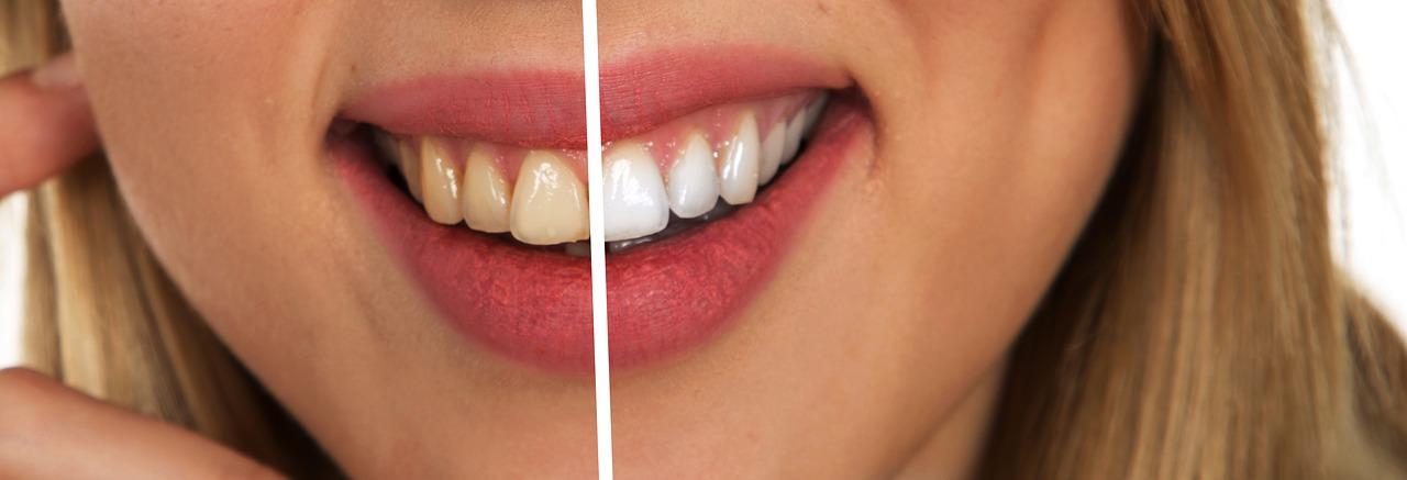 Kokosöl für die Zähne